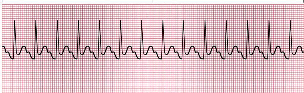 heart beats rhythm self quiz fast and Skipping a beat — the surprise of heart palpitations  is your heart's rhythm fast or slow  medical treatment for heart palpitations if self-help techniques .